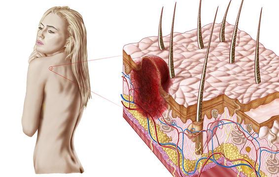 3 bệnh tiềm ẩn là thủ phạm khiến da bạn bị khô, ngứa, bong vảy... - Ảnh 5.