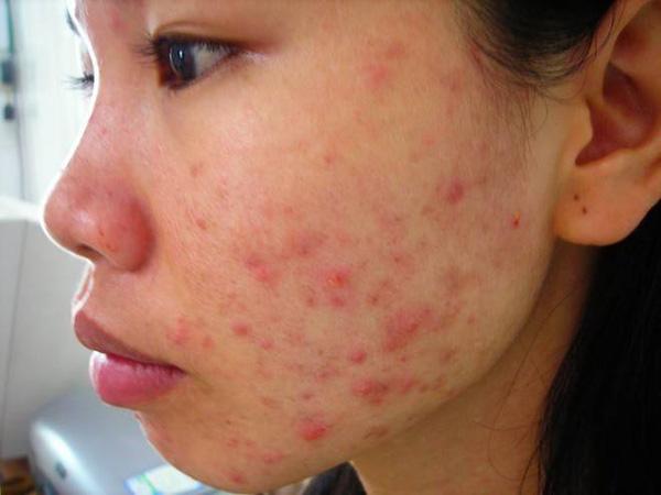 5 bước chăm sóc da sau khi nặn mụn để hạn chế tối đa tình trạng sẹo thâm - Ảnh 1.