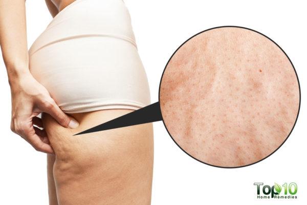 Nếu muốn da mịn màng, không bao giờ bị sần sùi như vỏ cam: Hãy áp dụng theo cách này - Ảnh 1.