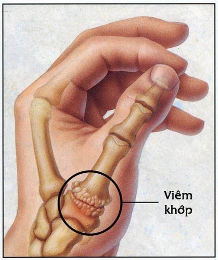 10 bài tập có tác dụng giúp bàn tay và ngón tay của bạn linh hoạt, tránh bị viêm khớp - Ảnh 1.