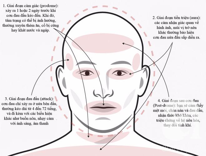 Không phải cơn đau đầu nào cũng giống nhau, phải biết phân biệt để điều trị đúng cách và kịp thời - Ảnh 3.