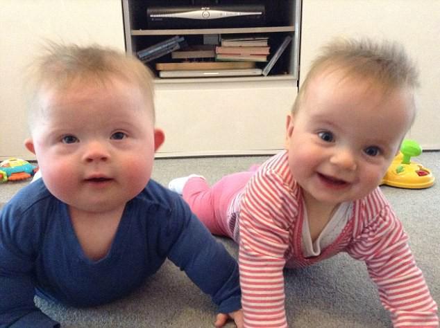 Được khuyên bỏ thai vì con mắc bệnh Down, mẹ kiên quyết từ chối và hạnh phúc nhận kết quả vài tháng sau đó - Ảnh 6.