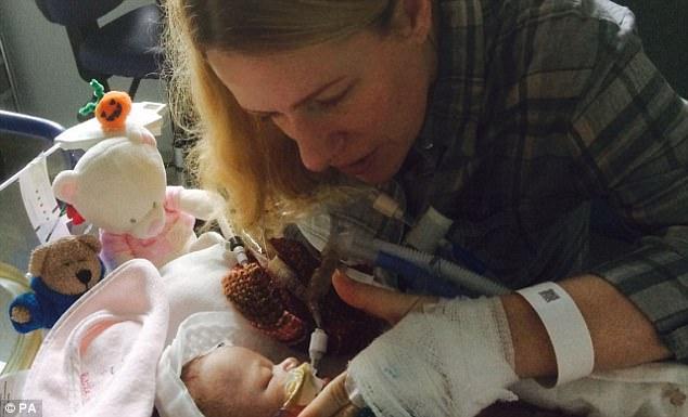 Vừa ra khỏi bụng mẹ, bé sơ sinh đã ngừng thở nhưng phép màu lại xảy ra 2