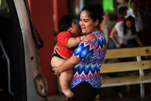 Con 10 tháng nặng 28kg, mẹ đinh ninh con hấp thụ sữa mẹ tốt mà không ngờ mắc bệnh đặc biệt - Ảnh 7.