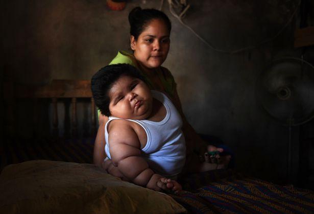 Con 10 tháng nặng 28kg, mẹ đinh ninh con hấp thụ sữa mẹ tốt mà không ngờ mắc bệnh đặc biệt - Ảnh 6.