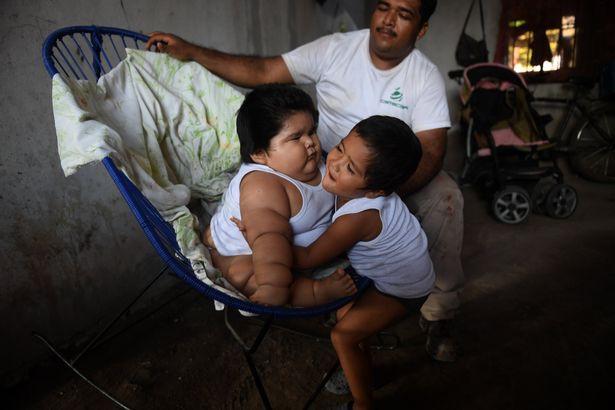 Con 10 tháng nặng 28kg, mẹ đinh ninh con hấp thụ sữa mẹ tốt mà không ngờ mắc bệnh đặc biệt - Ảnh 2.