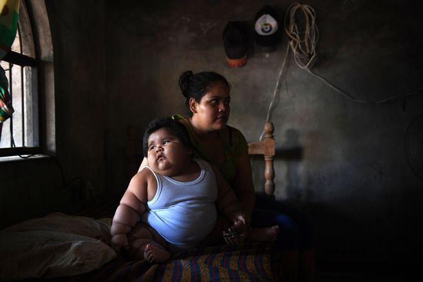 Con 10 tháng nặng 28kg, mẹ đinh ninh con hấp thụ sữa mẹ tốt mà không ngờ mắc bệnh đặc biệt - Ảnh 5.