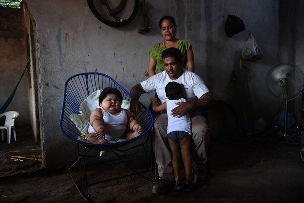 Con 10 tháng nặng 28kg, mẹ đinh ninh con hấp thụ sữa mẹ tốt mà không ngờ mắc bệnh đặc biệt - Ảnh 3.