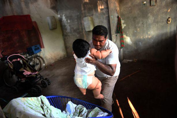 Con 10 tháng nặng 28kg, mẹ đinh ninh con hấp thụ sữa mẹ tốt mà không ngờ mắc bệnh đặc biệt - Ảnh 8.