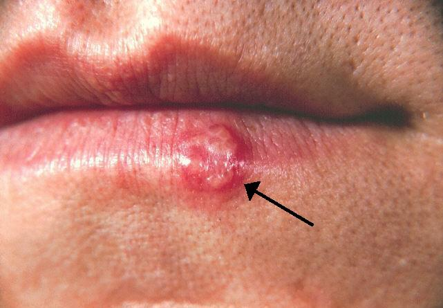 Những sự thật bạn chưa biết về bệnh Herpes, đọc đi nếu không muốn sợ hãi với chúng - Ảnh 1.