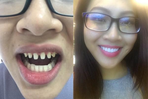 răng sứ - Ảnh 3.