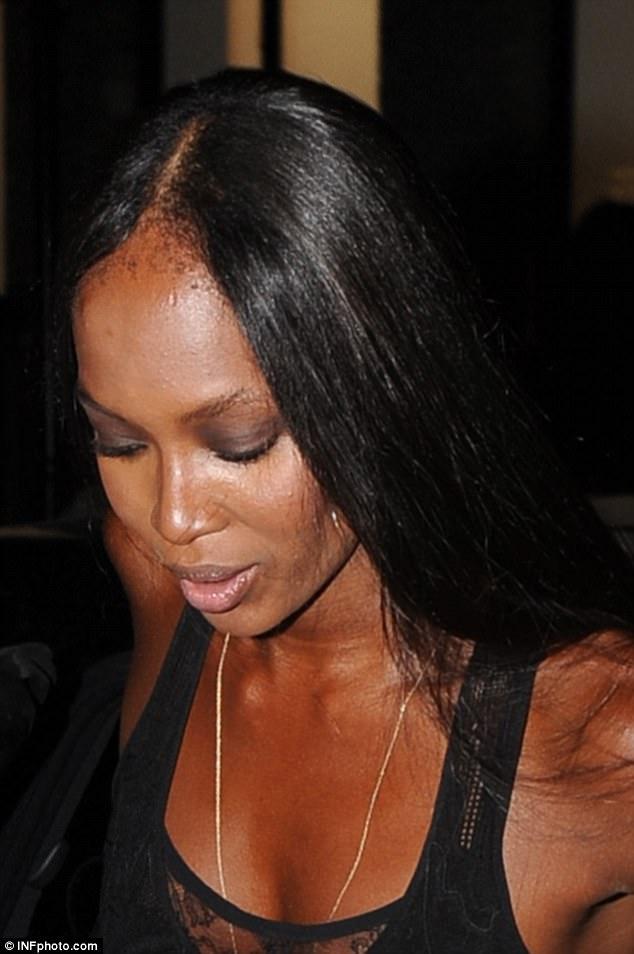 Nữ nhà văn trẻ cảnh báo nguy cơ gây hói đầu do nối tóc - Ảnh 4.