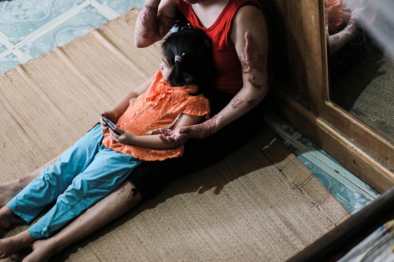 Thùy Dung - người mẹ trẻ bị chồng tạt xăng đốt năm nào: Từ ngọn đuốc sống hóa thân thành ngọn lửa truyền sức sống - Ảnh 6.
