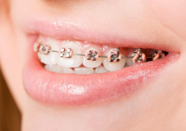 Teeth straightening options for adults uk
