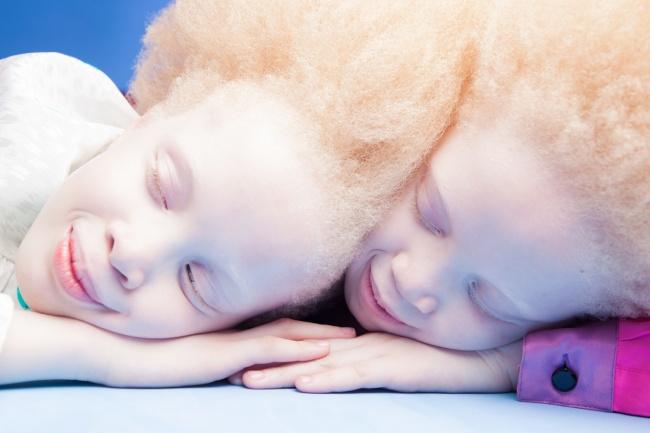 Vẻ đẹp của cặp sinh đôi bạch tạng hiếm có khó tìm nhất thế giới - Ảnh 1.