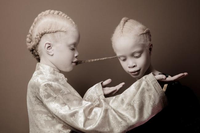 Vẻ đẹp của cặp sinh đôi bạch tạng hiếm có khó tìm nhất thế giới - Ảnh 2.