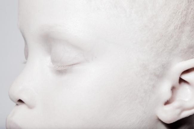 Vẻ đẹp của cặp sinh đôi bạch tạng hiếm có khó tìm nhất thế giới - Ảnh 3.