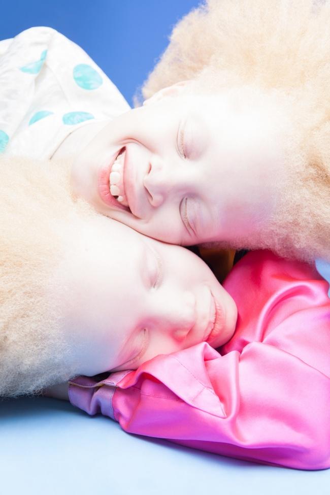 Vẻ đẹp của cặp sinh đôi bạch tạng hiếm có khó tìm nhất thế giới - Ảnh 5.