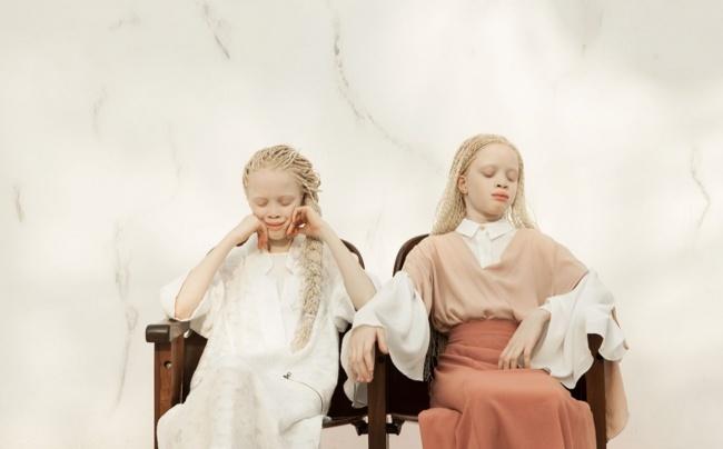 Vẻ đẹp của cặp sinh đôi bạch tạng hiếm có khó tìm nhất thế giới - Ảnh 7.