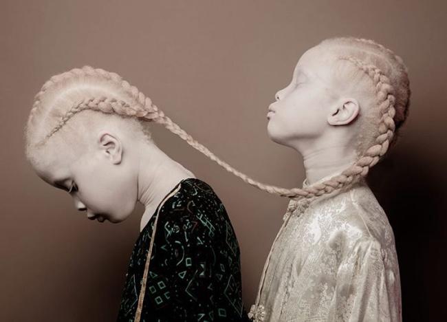 Vẻ đẹp của cặp sinh đôi bạch tạng hiếm có khó tìm nhất thế giới - Ảnh 9.