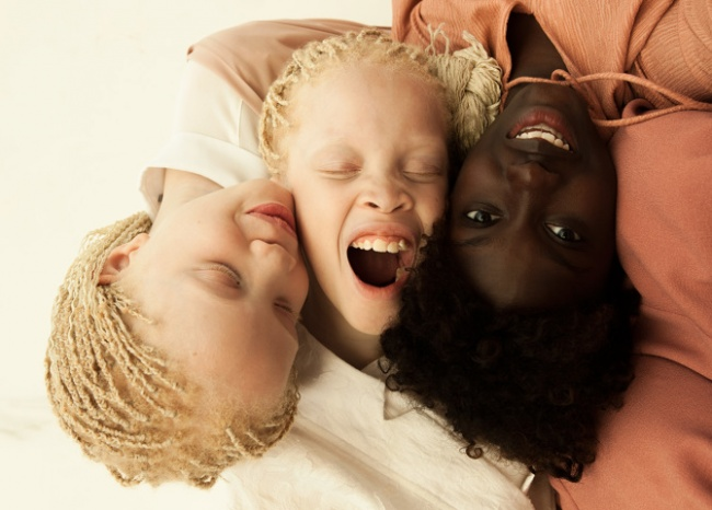 Vẻ đẹp của cặp sinh đôi bạch tạng hiếm có khó tìm nhất thế giới - Ảnh 11.