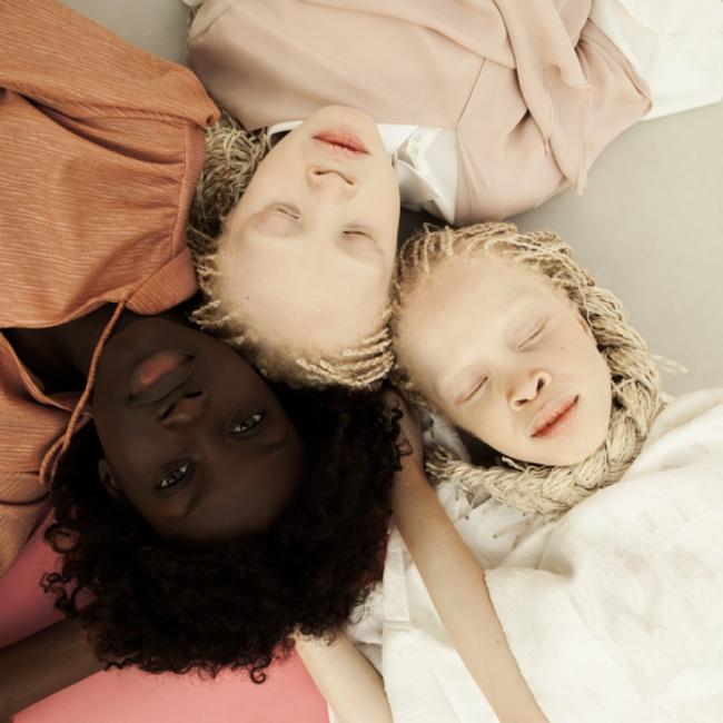 Vẻ đẹp của cặp sinh đôi bạch tạng hiếm có khó tìm nhất thế giới - Ảnh 12.
