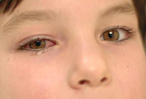 Bố mẹ nuôi con nhỏ phải nằm lòng những loại bệnh trẻ em thường mắc phải dưới đây - Ảnh 6.