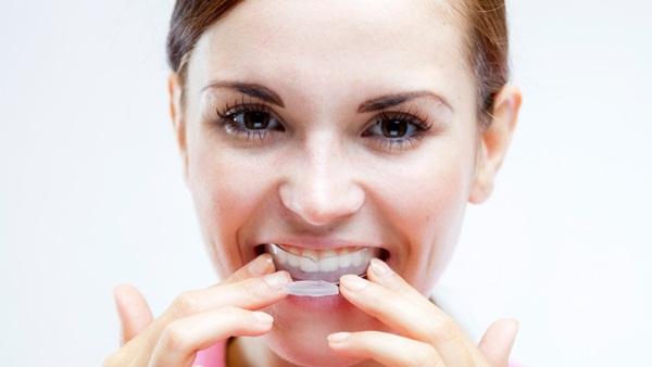 Để làm trắng răng, đây là 7 cách đơn giản mà con người hiện đại hay sử dụng nhất - Ảnh 3.