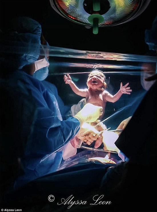 Màn chắn trong suốt: Điểm mới trong sinh mổ giúp mẹ tận mắt chứng kiến quá trình chào đời của con - Ảnh 2.
