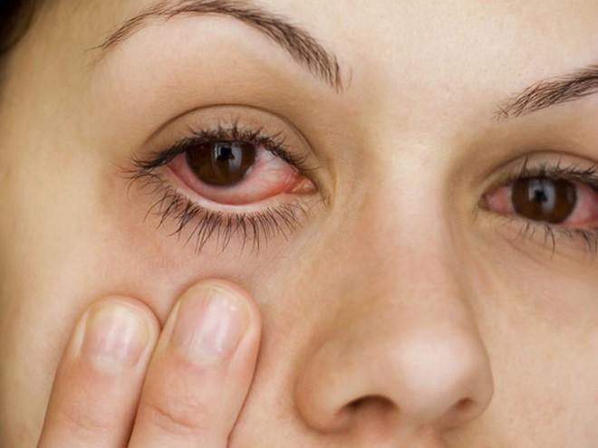 Đây chính là những lý do khiến mắt đỏ khi giao mùa và cách xử lý đúng đắn nhất - Ảnh 6.
