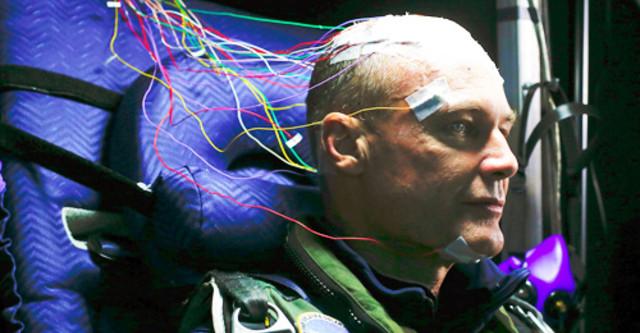 Kích thích trực tiếp dòng điện xuyên sọ đem lại hi vọng mới cho bệnh nhân chết não - Ảnh 2.