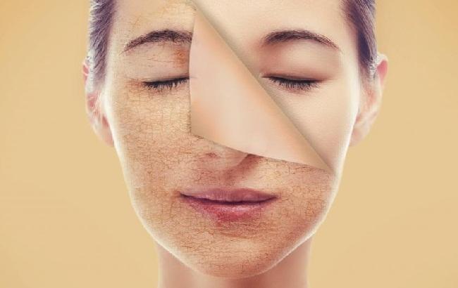 Đừng làm những điều này trên da mặt nếu bạn không muốn rước bệnh vào người - Ảnh 3.