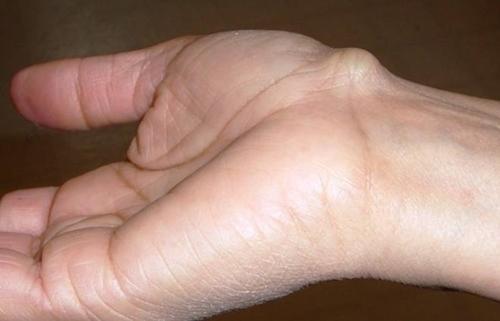 Bỗng xuất hiện cục nổi trên cổ tay, đừng vội vàng bỏ qua vì đó là dấu hiệu cảnh báo bệnh vô cùng hãi hùng - Ảnh 3.