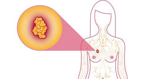 Chị em càng làm đẹp theo cách này càng tăng nguy cơ bị ung thư vú - Ảnh 3.