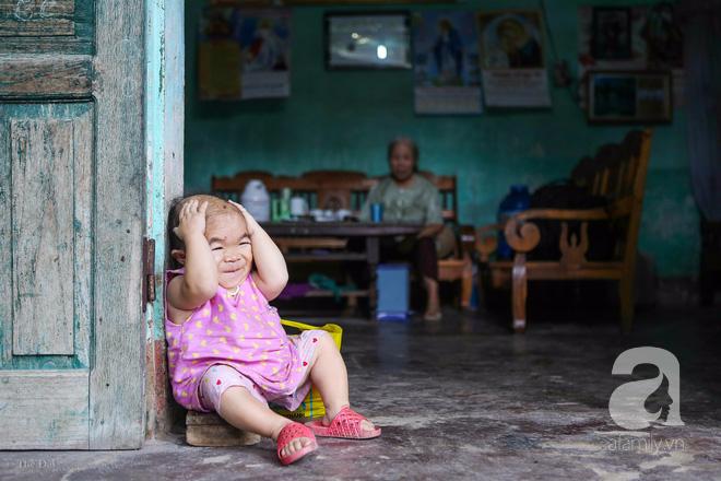 Cô gái gần 30 vẫn mang hình hài của đứa trẻ 2 tuổi: Lủi thủi trong nhà cả đời, không có bạn cùng chơi - Ảnh 3.