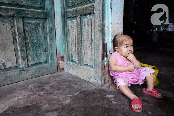 Cô gái gần 30 vẫn mang hình hài của đứa trẻ 2 tuổi: Lủi thủi trong nhà cả đời, không có bạn cùng chơi - Ảnh 6.