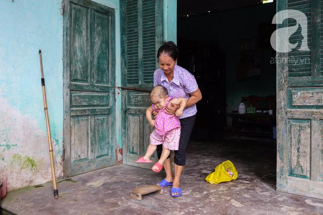 Cô gái gần 30 vẫn mang hình hài của đứa trẻ 2 tuổi: Lủi thủi trong nhà cả đời, không có bạn cùng chơi - Ảnh 13.
