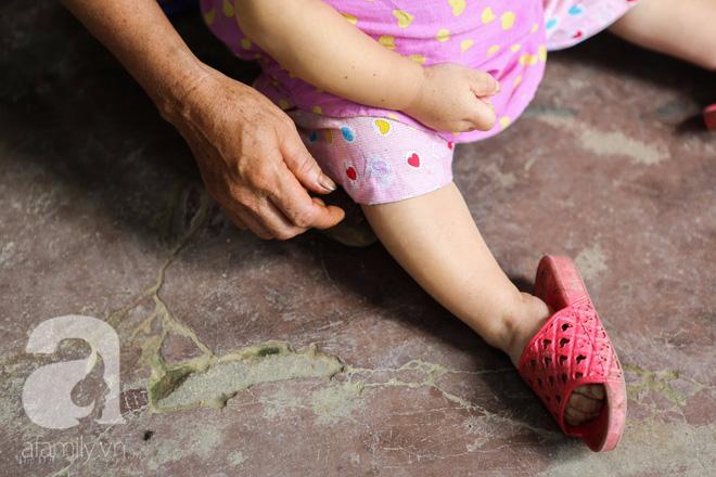 Cô gái gần 30 vẫn mang hình hài của đứa trẻ 2 tuổi: Lủi thủi trong nhà cả đời, không có bạn cùng chơi - Ảnh 7.