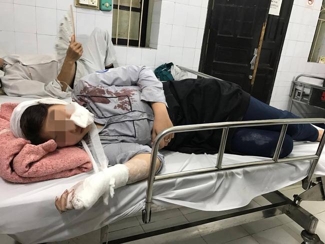 Vụ nhóm thanh niên đánh tập thể nữ sinh kinh hoàng ở Hà Nội: Triệu tập 2 nghi can - Ảnh 3.