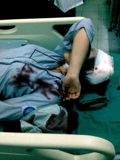 Hà Nội: Kinh hoàng nữ sinh lớp 10 bị 3 thanh niên dùng tuýp sắt tấn công - Ảnh 2.
