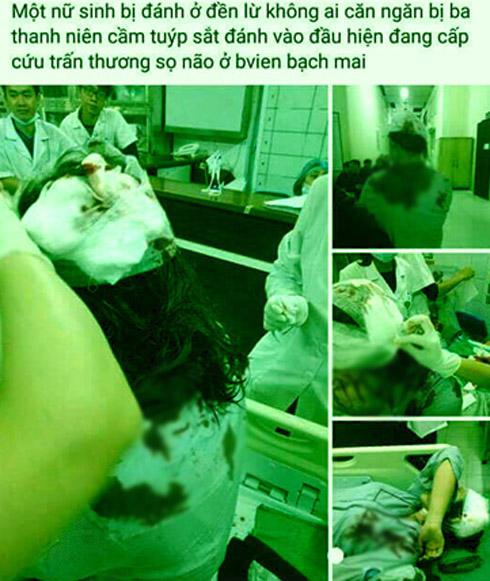 Hà Nội: Kinh hoàng nữ sinh lớp 10 bị 3 thanh niên dùng tuýp sắt tấn công - Ảnh 1.