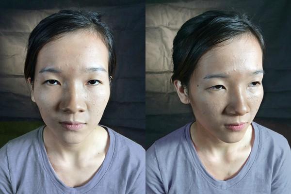 Cô gái mắt lươn từng bị ngăn cấm tình yêu, đuổi việc vì nhìn gian manh lột xác ngoạn mục sau phẫu thuật thẩm mỹ - Ảnh 3.