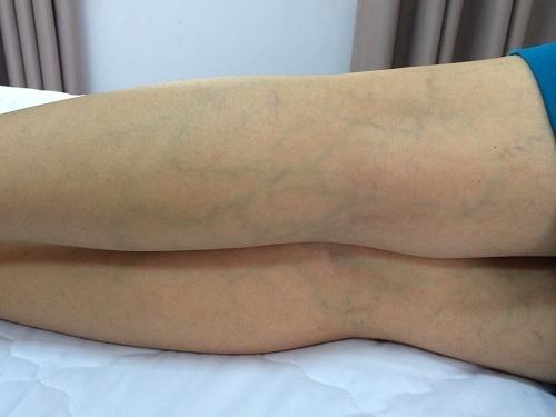 Phụ nữ chớ nên coi thường việc nổi gân xanh trên cơ thể, nhất là trên chân - Ảnh 4.