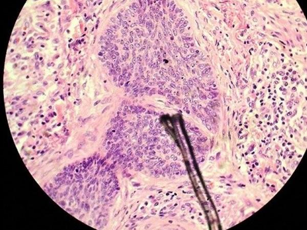 Ứng dụng nghiên cứu tế bào biểu mô ung thư và các bệnh về da - Ảnh 1.
