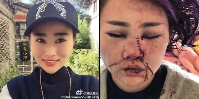 Trung Quốc: Đang ăn BBQ, các cô gái xinh đẹp bất ngờ bị nhóm nam giới say rượu đánh đập, tấn công dã man - Ảnh 1.