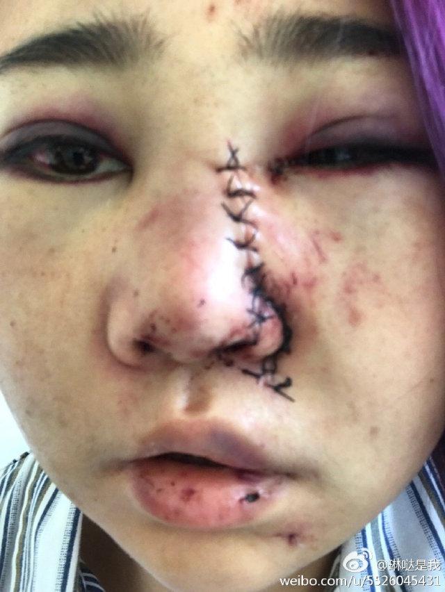 Trung Quốc: Đang ăn BBQ, các cô gái xinh đẹp bất ngờ bị nhóm nam giới say rượu đánh đập, tấn công dã man - Ảnh 2.
