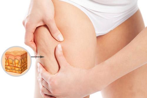 Phụ nữ nào cũng đều dùng 2 nguyên liệu quen thuộc để đánh bật tình trạng sần da, giờ đến bạn áp dụng - Ảnh 2.