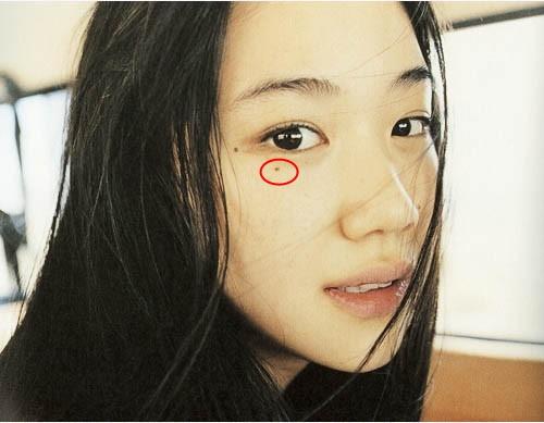 Nếu bạn có nốt ruồi xung quanh mắt thì nhất định phải hiểu rõ ý nghĩa của chúng, nhất là tình duyên - Ảnh 2.