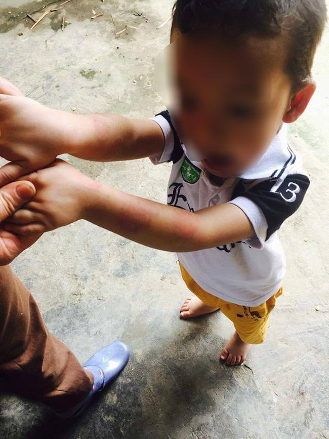 Vụ bé trai 4 tuổi bị dốc ngược vào máy vặt lông gà: Tạm đình chỉ công tác hiệu trưởng - Ảnh 1.