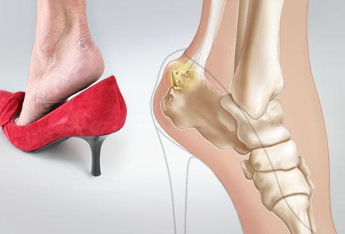 Giày dép là đam mê của phái đẹp, nhưng những kiểu giày nguy hiểm này thì nên tránh chị em ạ - Ảnh 1.
